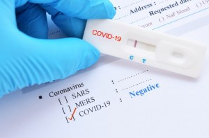 SARS-CoV-2 (Covid-19): Diagnosis by IgG/IgM Rapid Test Kyvobio Belgium
